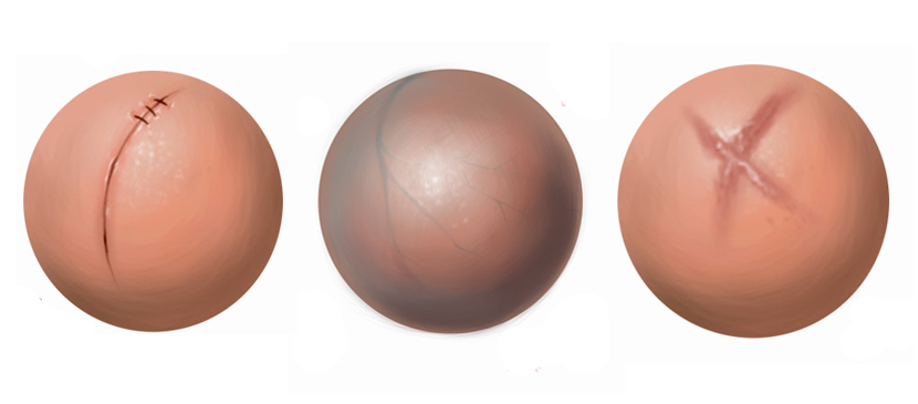 Making Different Human Skin Surfaces